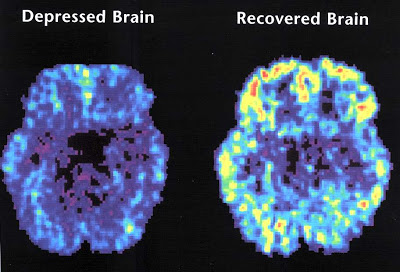 MDD Brain